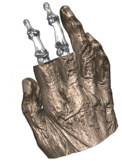 Patient hand measured with SCANCO XtremeCT