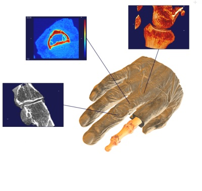 Patient hand measured with SCANCO XtremeCT with multiple VOI-images